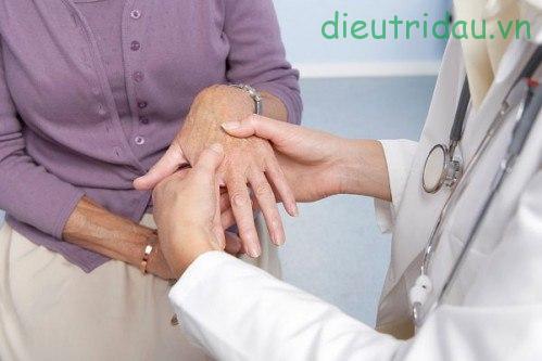 Co cứng cơ: Những thông tin người bệnh cần biết