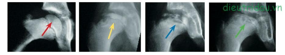 Hình ảnh Xquang biến đổi theo giai đoạn bệnh