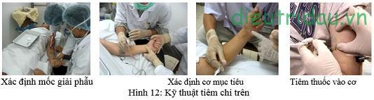 Phương pháp tiêm Botilinum Toxine Type A