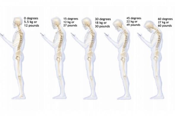 Áp lực tác động lên đĩa đệm vùng cột sống cổ