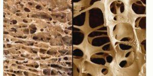 Bệnh loãng xương (Osteoporosis)