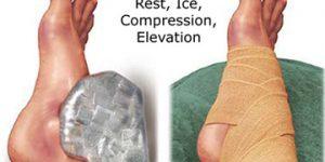 Phương pháp điều trị nhiệt lạnh