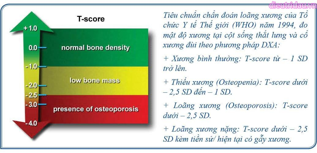 Tiêu chuẩn chẩn đoán loãng xương của Tổ chức Y tế Thế giới (WHO) năm 1994