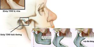 Điều trị khớp thái dương hàm