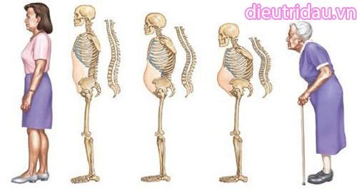 Người bị mãn kinh, nên đo loãng xương 6 tháng/lần