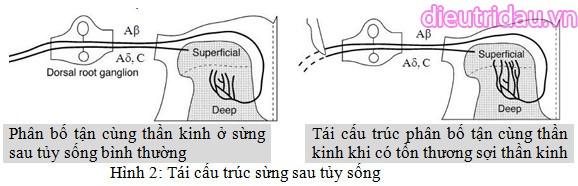 Tái cấu trúc sừng sau tủy sống