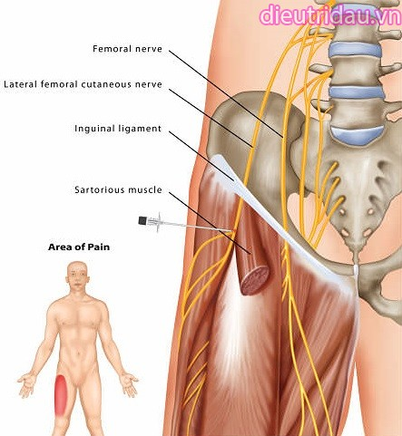 Hội chứng Meralgia Paresthetica