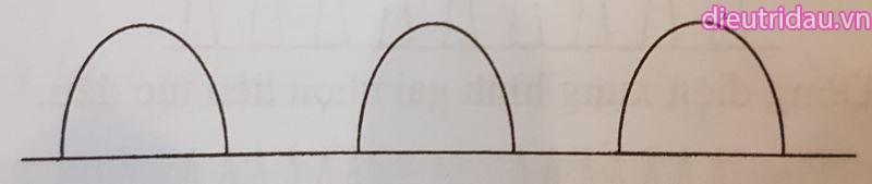 Hình 5. Dòng điện xung hình sin một chiều.