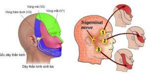 Zona thần kinh cấp tính ở nhánh mắt của dây thần kinh sinh ba