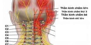 Đau thần kinh chẩm (đau sau đầu)
