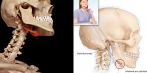 Hội chứng xương móng