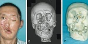 Loạn dưỡng thần kinh giao cảm phản xạ ở mặt