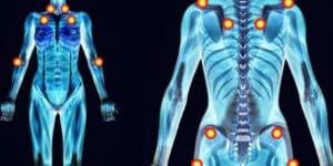 Hội chứng đau cơ xơ hóa (Fibromyalgia syndrome)