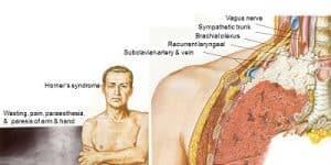 Hội chứng khối u Pancoast (U đỉnh phổi)