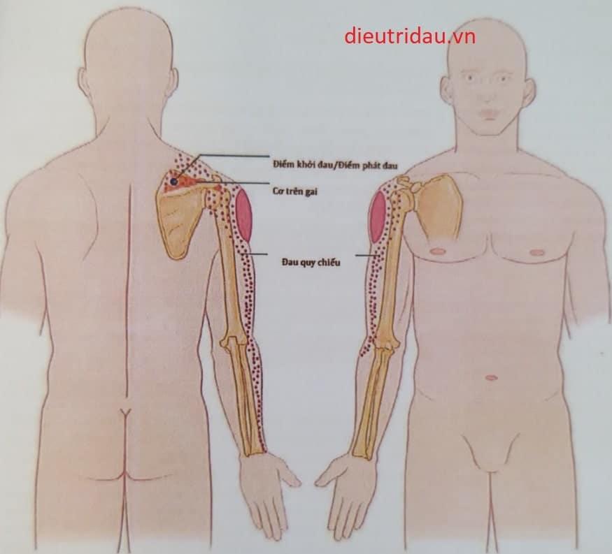 Đau khi vận động vai, và đau lan qua vai và chi trên không theo phân vùng cảm giác da là đặc trưng của hội chứng gân cơ trên gai
