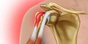 Viêm gân cơ nhị đầu