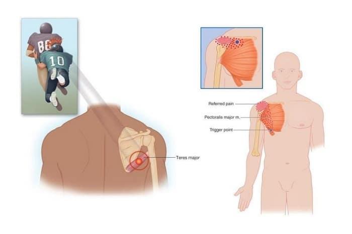 Hội chứng cơ tròn lớn